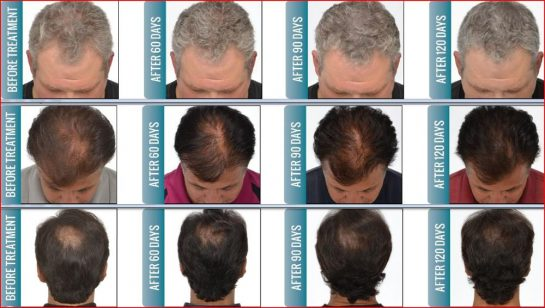 Diode Laser Hair Growth