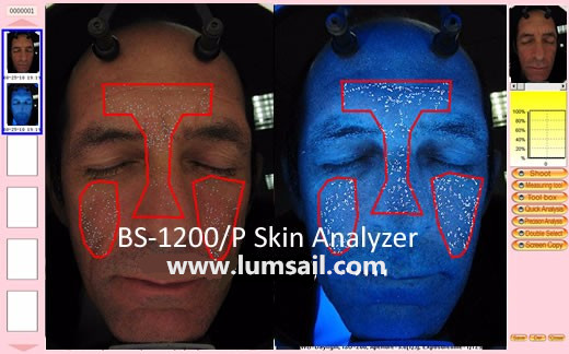 Portable Facial Skin Analyzer